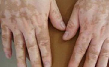 白癜风早期都有哪些症状